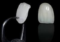 lente de contato dentes