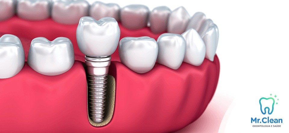 Implante dentário sem mistério e sem complicações