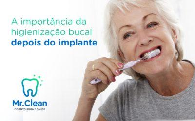 A importância da higienização bucal depois dos Implantes