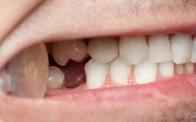 Perda dentária: 5 motivos e como prevenir