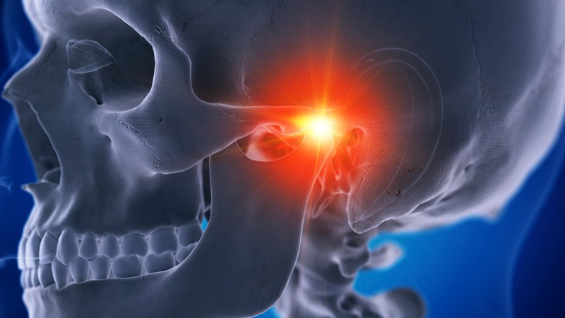 disfuncao-temporomandibular-dtm