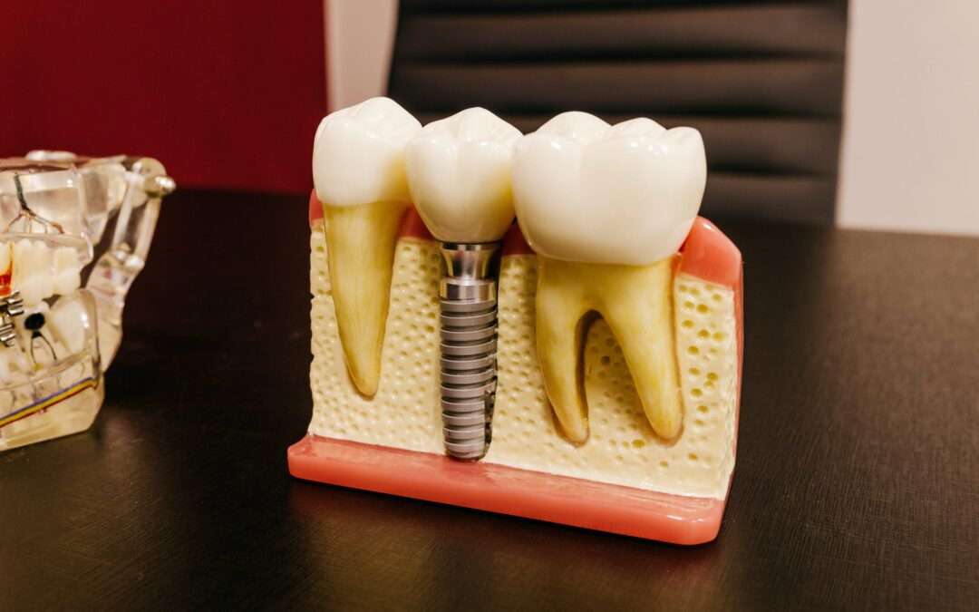 Implante dentário dói? Saiba mais sobre este tratamento.